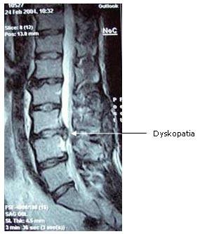 dyskopatia leczenie dyskopatii dyskopatyczne, rwa kulszowa leczenie rwy kulszowej, lumbago, leczenie kręgosłupa, kręgosłup rehabilitacja, wypadnięty dysk leczenie ból kręgosłupa, bólu kręgosłupa, przepuklina leczenie przepukliny, fizjoterapia, terapia manualna, rehabilitacja