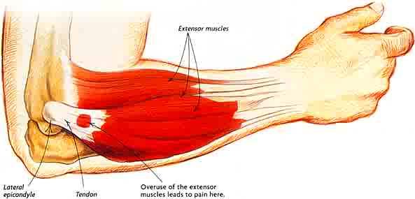 Leczenie łokcia tenisisty, ból łokcia, łokieć tenisity, rehabilitacja, terapia manualna, fizjoterapia