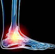Leczenie skręconej kostki, fizjoterapia, terapia manualna, rehabilitacja, skręcenie kostki, zwichnięcie kostki
